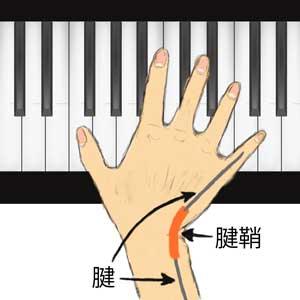 腱と腱鞘が擦れる右手の角度